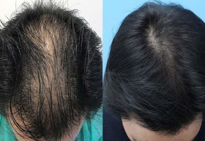 Hair Restoration in Iran