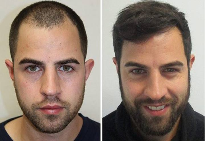 Hair transplant cost in Iran