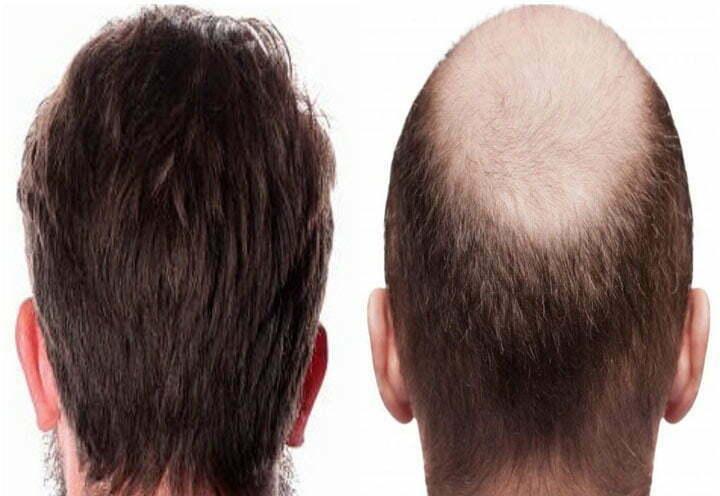 Hair transplant in Iran-medical tour