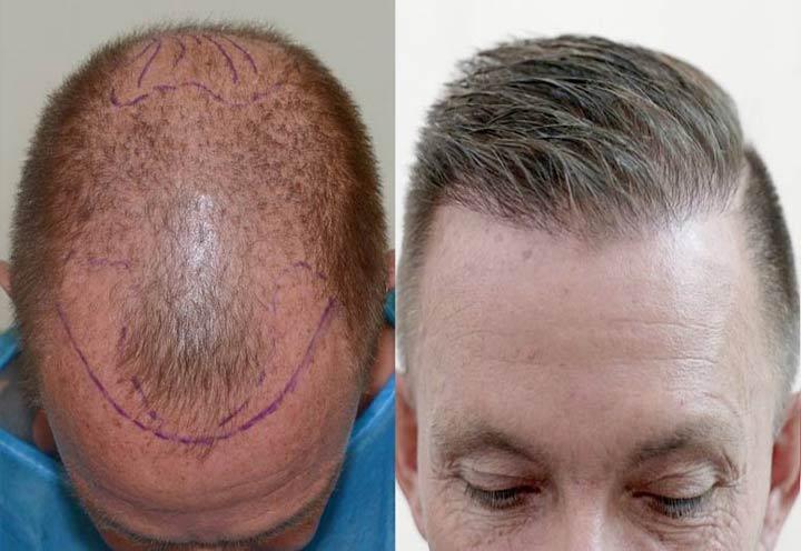 Hair transplant by Iranian surgeons
