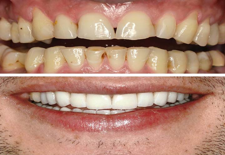 cosmetic dentistry in Iran-medical tour